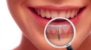 Dental Implants Clinic Jalandhar
