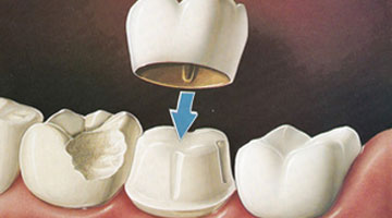 Goyal Dental Implants Clinic