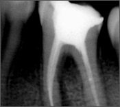 Root Canal Treatment Clinic Jalandhar in Punjab