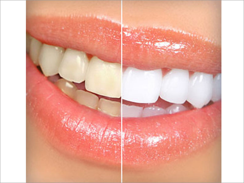 Tooth Whitening System | Tooth Whitening Treatment Clinic